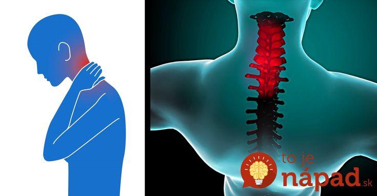 Príčinou väčšiny stuhnutých krkov je nesprávny spánok. Príčinou však môže byť aj zdĺhavé držanie hlavy vysunutej dopredu, k čomu dochádza pri práci s počítačom. Čím skôr spravíte nápravu, tým skôr sa dostaví úľava.    Video, ktoré je