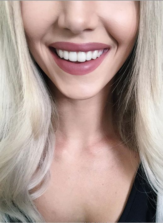 Visit Dental Clinic For Teeth Whitening Or Dental Implants Cosmeditour Client Had Dental Veneers At Dental Clinic In