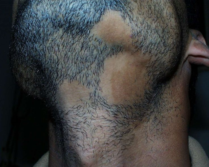 Alopecia Areata - a disease of unknown cause in which sudden well-defined bald patches occur. The bald areas are usually round or oval and located on the head and other hairy parts of the body. Hairs that look like exclamation point can sometime occur at a bald patch's edges. The condition is usually self-limited and often clears completely within 6 to 12 months without treatment. Recurrences are common...