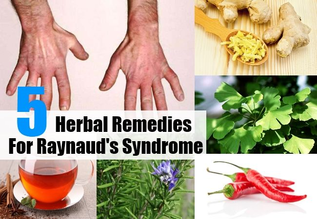 Health Care A to Z - https://www.healthcareatoz.com/top-5-herbal-remedies-for-raynauds-syndrome/