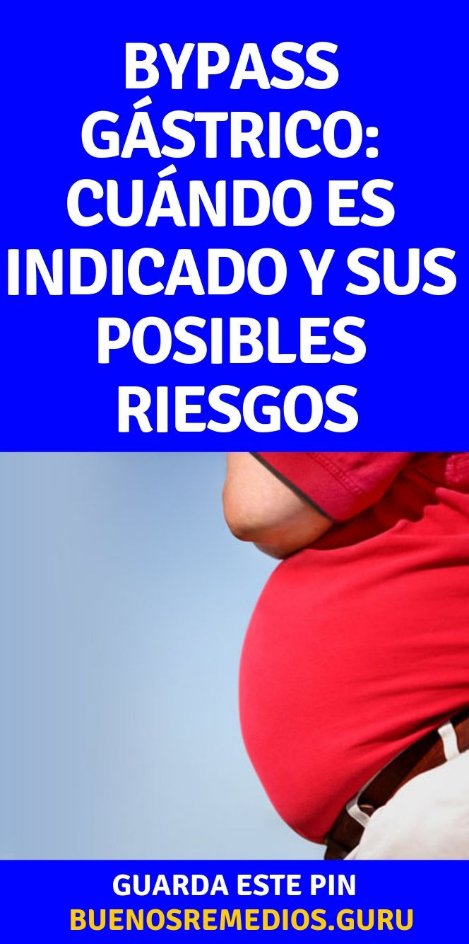 Bypass Gástrico Cuándo Es Indicado Y Sus Posibles Riesgos Buenos Remedios Bypass Gástrico Tratamiento De La Obesidad Cirugia Bariatrica