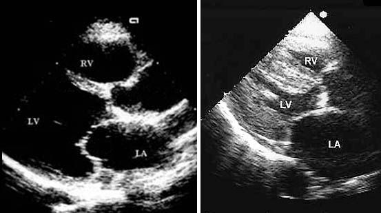 Normal echocardiogram compared with echocardiogram of a heart with heart failure
