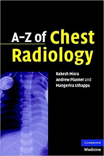 A-Z of Chest Radiology 1st Edition