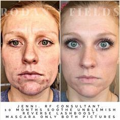 Amazing 10 month transformation with UNBLEMISH, SOOTHE, REVERSE, and LASH BOOST.   Amazing skin or your money back, guaranteed! Contact me at valnfath@gmail.com or shop online at https://valnfath.myrandf.biz/ #rodan+fields #randf #rodanandfields