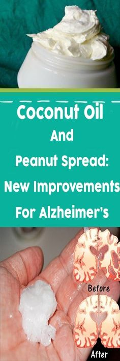 Coconut Oil And Peanut Spread: New Improvements For Alzheimer's -