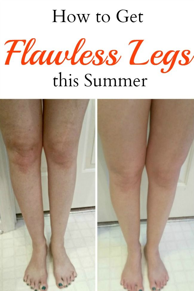 Embarrassed about the way your legs look? Don't be! Use this technique to get…