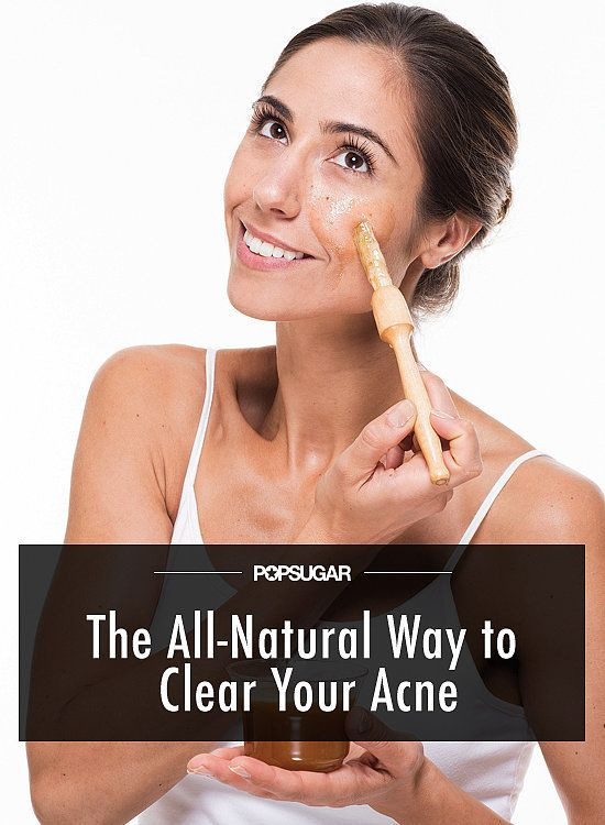 How to Clear Your Acne With Natural Ingredients