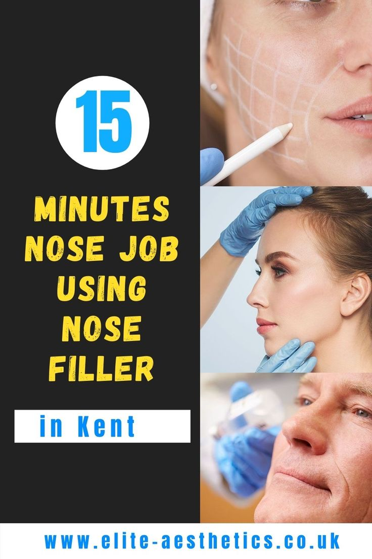 Non surgical nose job in kent uk nose job nonsurgical