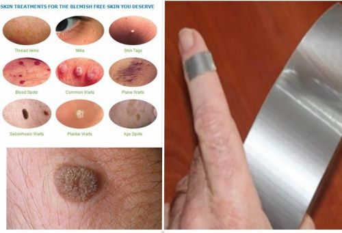 Warts are small, benign skin growths that are caused by one of 100 different strains of the human papillomavirus (HPV). When a wart forms, the HPV enters the uppermost layer of the skin and gets trapped. It then grows rapidly, forming a hard outer casing. There are many different types of warts, which include common warts, plantar warts, flat warts, periungual warts and filiform warts. Warts can grow anywhere on the body though some types are only found in certain locations. For example…
