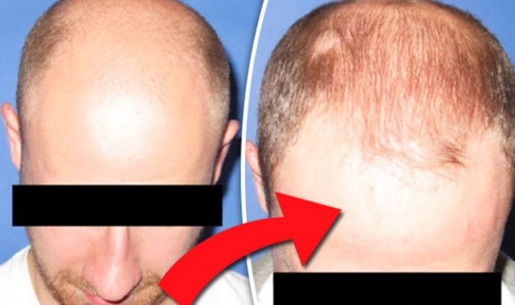 A BALDNESS cure that involves transferring fat from the stomach to the head claims to treat male pattern baldness. The hair loss treatment aims to help men wondering how to stop hair loss.