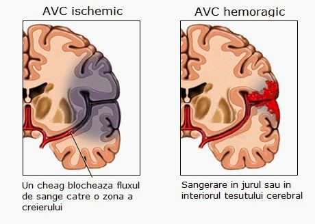 Medstory: Pe scurt despre accidentul vascular cerebral (AVC)...
