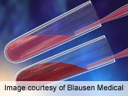 ACC: Seasonable Variation Observed in Lipid Profiles --Doctors Lounge