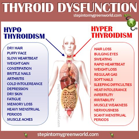 """☛ This chart will help you make the difference between """"Hypo"""" and """"Hyper"""" Thyroidism. PLEASE check with your health practitioner and do not self diagnose. A blood test will reveal what you have. HYPOTHYROIDISM DRINK: http://www.stepintomygreenworld.com/healthyliving/thyroid-drink/ ✒ Share 
