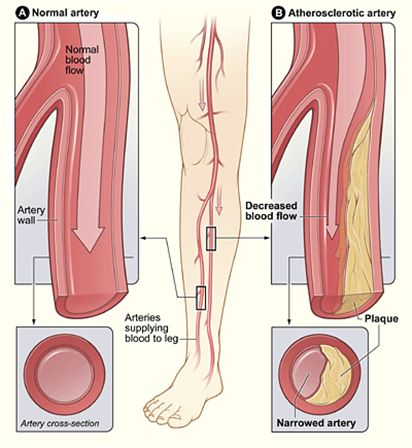 Peripheral Arterial Disease (P.A.D.).   Do ABI pressures to DX PVD & Lower ext arterial & venous Doppler US to R/o blood clots....