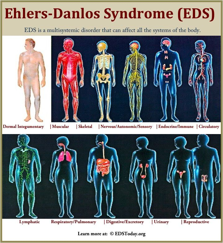 May is EDS Awareness Month. Please help to bring EDS awareness and education to others by spreading the word. Thank you!!!  Do YOU know what EDS is?  Do you know the signs/symptoms to look for?   Learn more at: edstoday.org