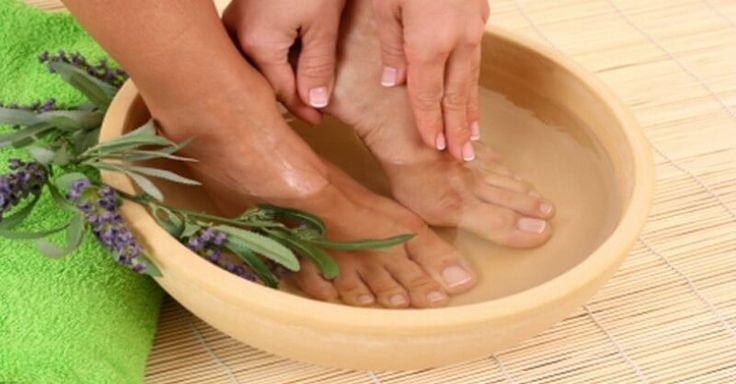 Zbavte se mykózy nehtů na nohou s těmito 5 bylinkami a domácími kúrami