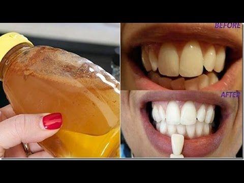 Los dentistas no quieren que esto salga a la luz!Esto te blanqueara los dientas desde el primer uso - YouTube