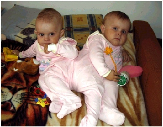What Are the Different Types of Twins?