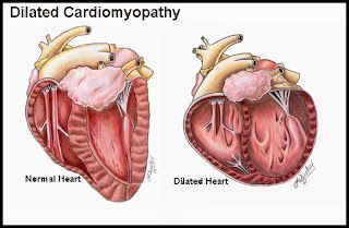Cardiomyopathy may occur for several reasons, including viral infections, heart attack, alcoholism, severe high blood pressure, heart structure abnormalities, and congenital heart defects.  Nutritional deficiencies and certain medical conditions, such as lupus, celiac disease, and end-stage kidney disease can lead to cardiomyopathy.
