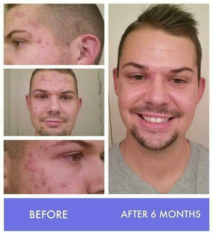 #acne #rodanandfields #unblemish #numberoneacne #acnescarring
