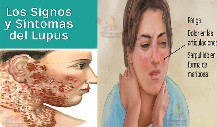 ¿Qué es lupus? Se denomina por ser una enfermedad inflamatoria, es decir, esto suele ocasionarse cuando el sistema inmunológico ataca a sus propios tejidos tal como las células por error. Síntomas del lupus: