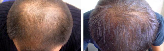 ¿Hora de recuperar el pelo perdido? Atento a esta selección con los mejores tratamientos anticaída.