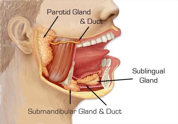 Stensen's Duct, also known as the parotid duct, is the ...