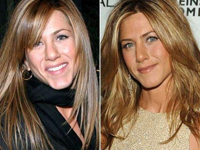 The Appearance Of Jennifer Aniston Plastic Surgery