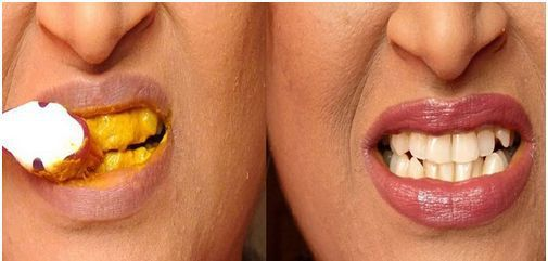 Bělení zubů s kurkumou? Skvělé pro kuřáky a konzumenty kávy!