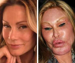 Nearly Unrecognizable! 21 Gorgeous Stars Who Became Monsters