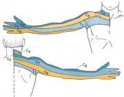 Cervical Radiculopathy - Physiopedia, universal access to physiotherapy knowledge.