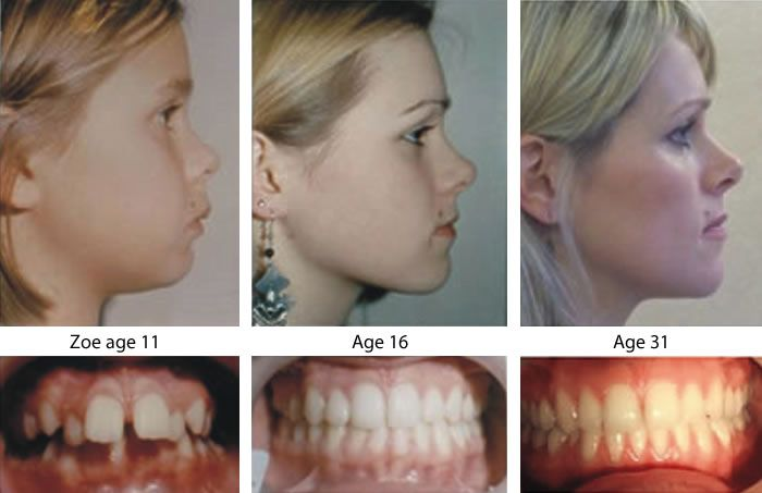 The Alternative To Orthodontics Without Extractions Or