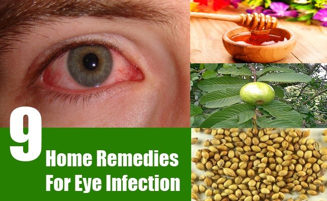 Suffering from eye infection? Try these 9 remedies
