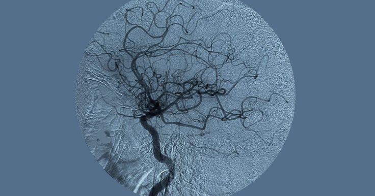 Como reverter a obstrução de veias e artérias. A aterosclerose é uma doença na qual veias e artérias tornam-se duras e estreitas, comprometendo o fluxo sanguíneo. É também um dos principais causadores de doenças cardiovasculares que, segundo a Associação Americana do Coração, são a principal causa de morte nos Estados Unidos. Embora não se conheça a causa exata, acredita-se que a aterosclerose ...