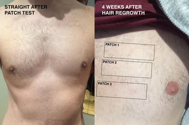 1000+ ideas about Body Transformations on Pinterest | Back ...