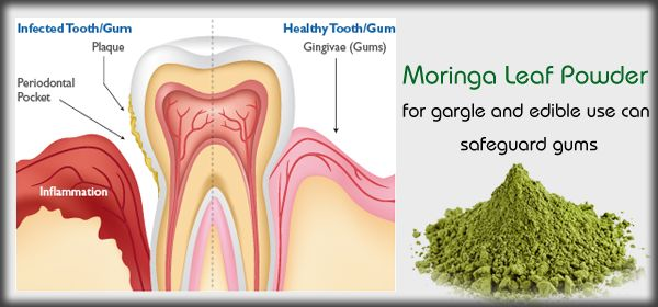 Moringa for Gum disease!   One may suffer gum related problems even if they maintain good dental care practices. This may be due to vitamins minerals and protein deficiencies. Initial stages of gum disease are treated by maintaining a good level of oral hygiene. You should brush your teeth morning and night. Flossing regularly can remove the bacteria in tooth gaps.  You should not miss regular dental check-ups. The food you take may also result in gum diseases. When you take more junk foods…