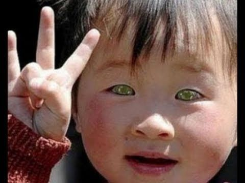 ▶ STAR CHILD BORN IN CHINA - EYES THAT SEE IN DARKNESS - YouTube