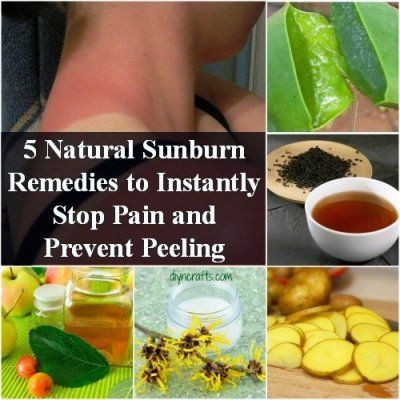 5 Natural Sunburn Remedies To Instantly Stop Pain & Prevent Peeling | Health & Natural Living