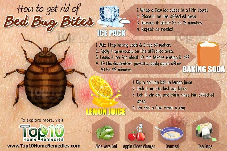 How To Get Rid Of Bed Bug Bites Top 10 Home Remedies Bed Bug Bites Rid Of Bed Bugs Bug Bites Remedies