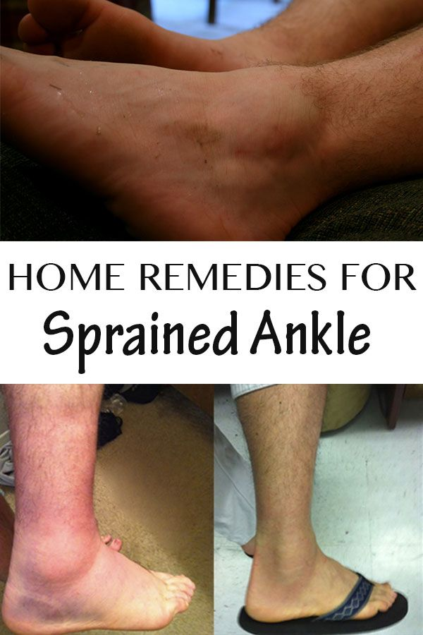 Home Remedies for Sprained Ankle