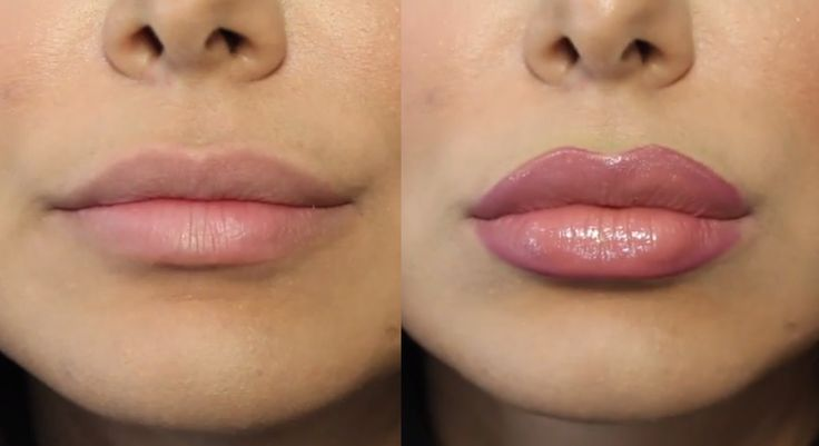 How to Fake a Lip Job (For Real)! – Video