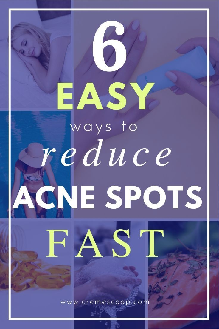 How To Reduce Acne Marks Fast 6 Simple Steps In 2020 Acne Marks Face Care Acne Reduces Acne