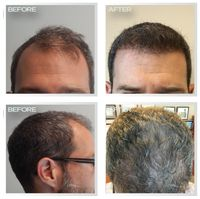 In the Natural Transplants, Hair Clinic, our hair doctor believe that nobody needs to suffer from hair loss. Because the science of hair loss evolves, the treatment of hair restoration becomes increasingly sophisticated at our hair clinic offering the best permanent hair loss cure - hair transplants.