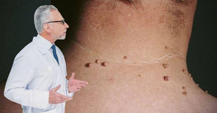 Todos conocemos el virus de papiloma humano, un virus que produce una especie de deformación similar a un tumor sobre nuestra piel, con forma de bulto marrón y de consistencia suave. Sin embargo, este tumor es por lo general totalmente benigno. El virus de papiloma humano, o comúnmente VPH, por l
