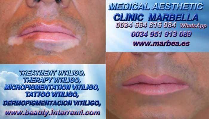 TRATAMIENTO VITILIGO Tratamiento Del Vitiligo Micropigmentación Vitiligo Camuflaje Vitiligo Tratamiento Vitiligo Marbella y Málaga