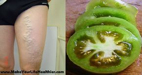 Comment faire pour guérir les varices à l'aide de tomates - Santé Nutrition