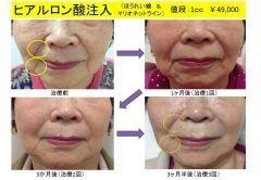 ヒアルロン酸でほうれい線やマリオネットラインの治療大濠パーククリニック  ほうれい線やマリオネットラインにヒアルロン酸を注入します効果は約6ヶ月です  治療の説明 ヒアルロン酸とは体内で自然に作られたコラーゲンエラスチンと共に皮膚にめぐらされ潤いをもたらします年齢とともにヒアルロン酸は減少することでしわの原因になります 作用機序 皮下にヒアルロン酸を注入するとシワに注入したヒアルロン酸が真皮の内側から肌を持ち上げてシワの溝を改善します 施術で使用するヒアルロン酸テオシアルは生体内に産生されるヒアルロン酸と同等の成分でありシワの改善に効果的です6ヶ月から1年持続します テオシアルテオシアルは2008年にAesthetic Medicine AwardsのInjectable Product of The Year(年間最優秀注入剤賞)を受賞し品質安全性ともに高い評価を受けていますヒアルロン酸濃度は最高レベルの25mg/mlで粒子のない硬めの高密度単一形状ヒアルロン酸です赤みやはれの原因の一つと考えられるタンパク質の量を極めて少なくしているため安心安全性の高いヒアルロン酸注入剤です…