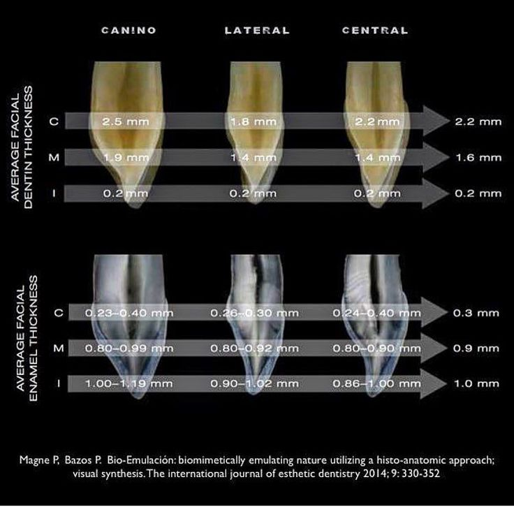 """Thickness is an important factor when we area talking about """"color perception """". The restorative layers need to replicate the natural tooth. Taken from @pascal_magne and Panos Bazos. Post borrowed from @drjohan_dale #biomimeticstudyclub #biomimeticdentistry #bioemulation #cosmeticdentistry #dental #dentalschool #dentalstudent #dentalphotography #dentistry #dentist #odontologia"""