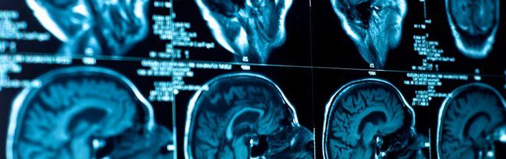 Hersentumor slinkt bij 4-jarig kind. Dit bijzonder effectieve antikankermiddel zou overal vrij verkrijgbaar moeten zijn - http://www.ninefornews.nl/hersentumor-slinkt-jarig-kind/