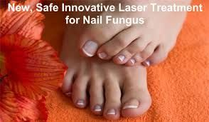 Effective Nail Fungus Treatment Check more at http://www.healthyandsmooth.com/nail-fungus/effective-nail-fungus-treatment/